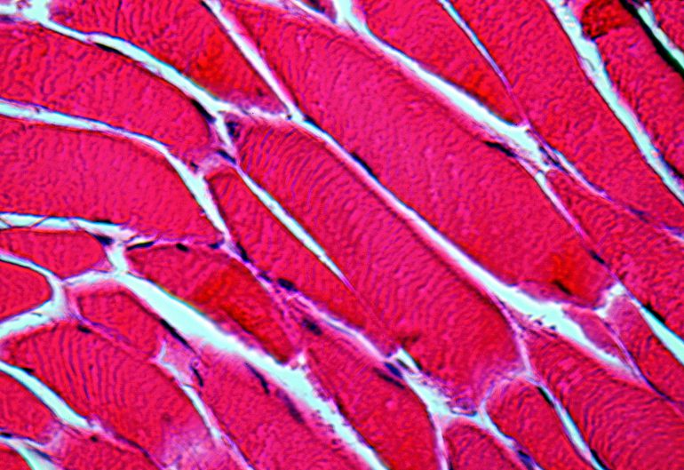 Healing muscle tissue gets help from a new 3D cell scaffold - Create ...