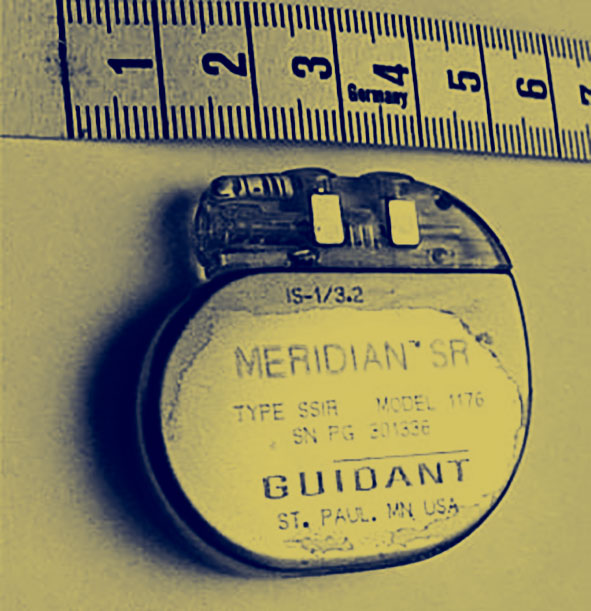 An early version of a pacemaker